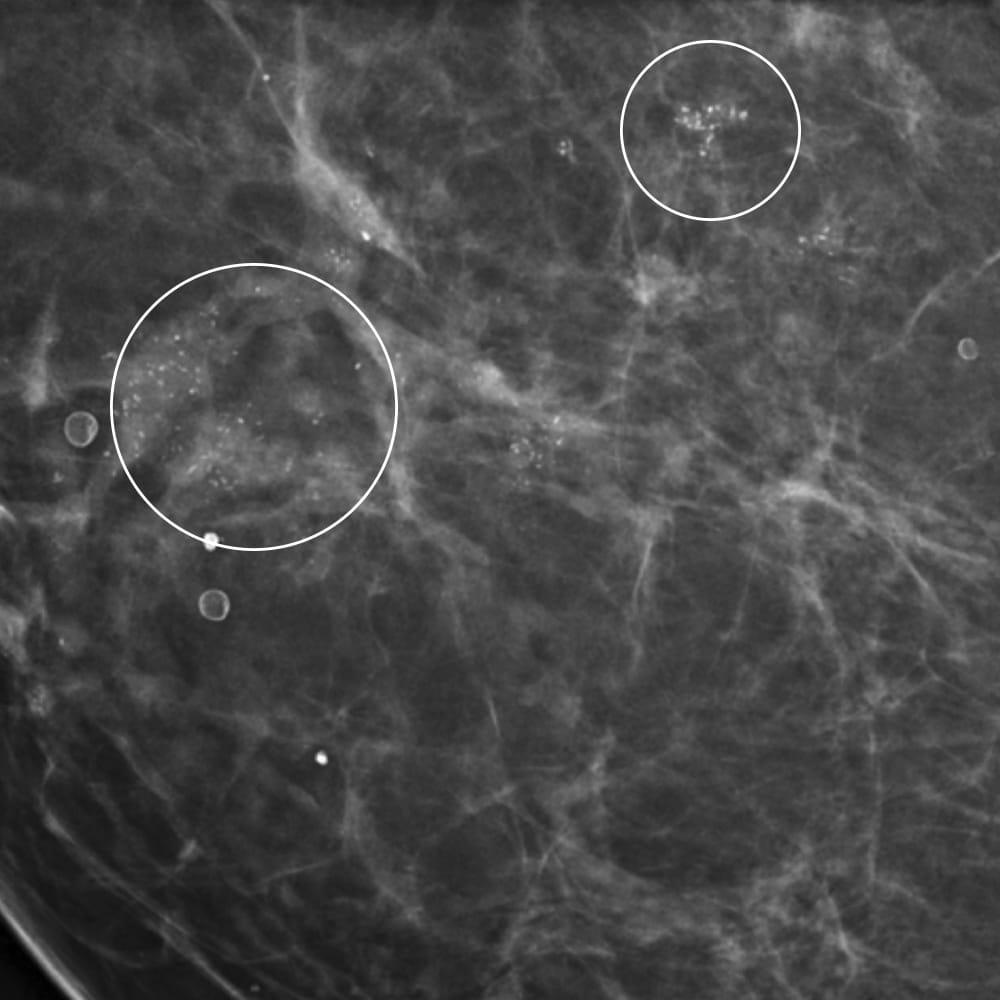 microcalcificazioni al seno